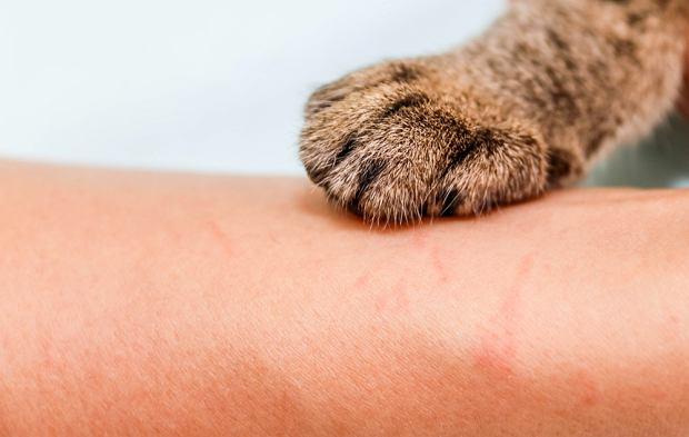 Choroba kociego pazura - przyczyny, objawy i leczenie