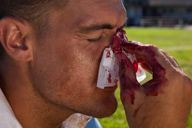 Krwotok: rodzaje, przyczyny, pierwsza pomoc