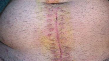 Niewielka pozioma blizna po prawej stronie? Zabieg laparoskopowy? Niestety, jeśli wyrostek robaczkowy pęknie, duży pionowy ślad po zabiegu to tylko jedna z przykrych konsekwencji