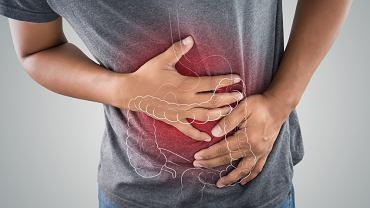 Nerwica żołądka to jedno z określeń zespołu jelita drażliwego. Pojęcie odnosi się do dolegliwości związanych z przewodem pokarmowym.