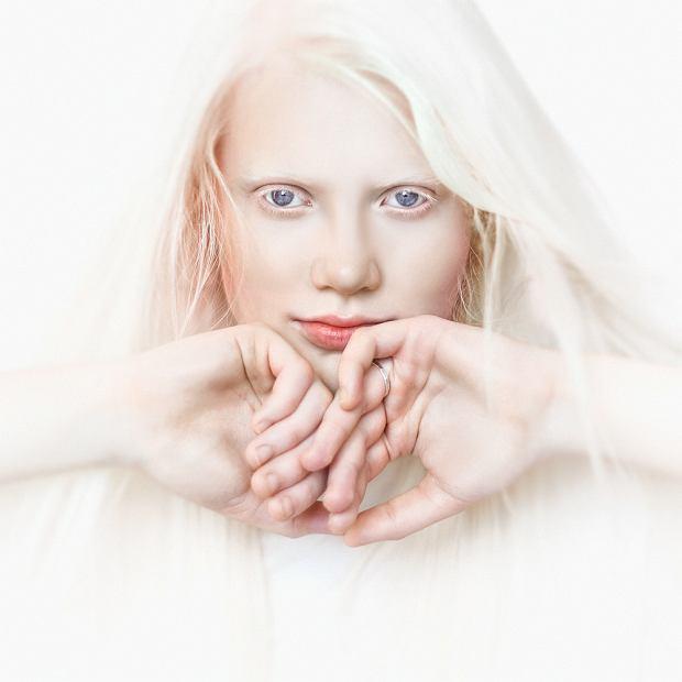 Albinizm (bielactwo wrodzone): przyczyny, rodzaje, objawy