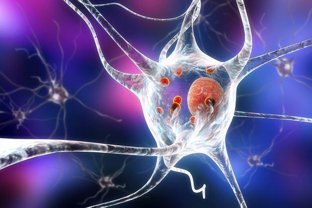 Choroba Parkinsona może mieć początek jeszcze przed urodzeniem. Badacze testują nowe metody leczenia