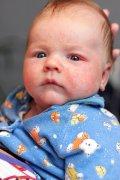 zapalenie spojówek u niemowlaka