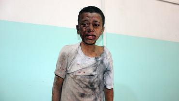 9.08.2018, prowincja Sada, Jemen, dziecko ranne w nalocie na autobus oczekuje na pomoc w miejscowym szpitalu.