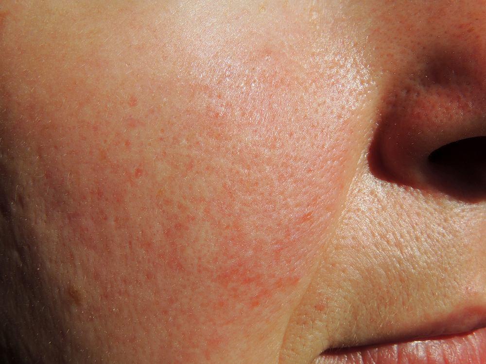 Trądzik różowaty to przewlekłe i zapalne schorzenie skóry, które manifestuje się występowaniem wykwitów rumieniowych, grudkowych i krostkowych.