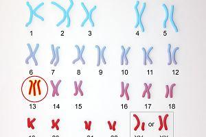 Zespół Patau - trisomia chromosomu 13.