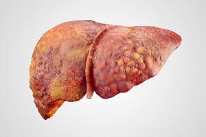 Marskość wątroby - objawy, diagnoza, leczenie
