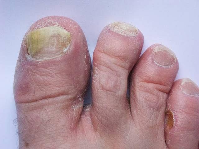 Grzybica jest chorobą zakaźną, można się nią zarazić np. nosząc nie swoje klapki na basenie lub używając cudzego ręcznika