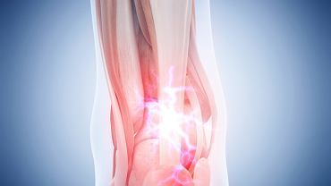 Zapalenie ścięgna Achillesa to przypadłość, która często dotyka osób aktywnych fizycznie