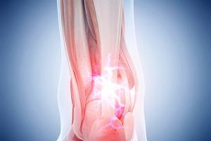 Zapalenie ścięgna Achillesa: przyczyny, leczenie