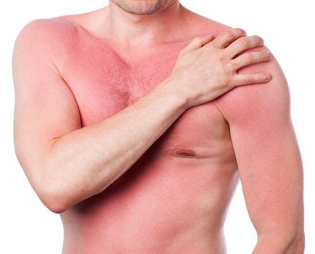Reguła dłoni pozwala ocenić wstępnie rozległość oparzeń, także słonecznych