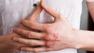 Egzema to dość często spotykana choroba skóry o nieinfekcyjnym podłożu zapalnym, zarówno alergicznym, jak i niealergicznym.