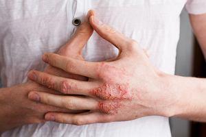 Egzema - przyczyny, objawy, leczenie