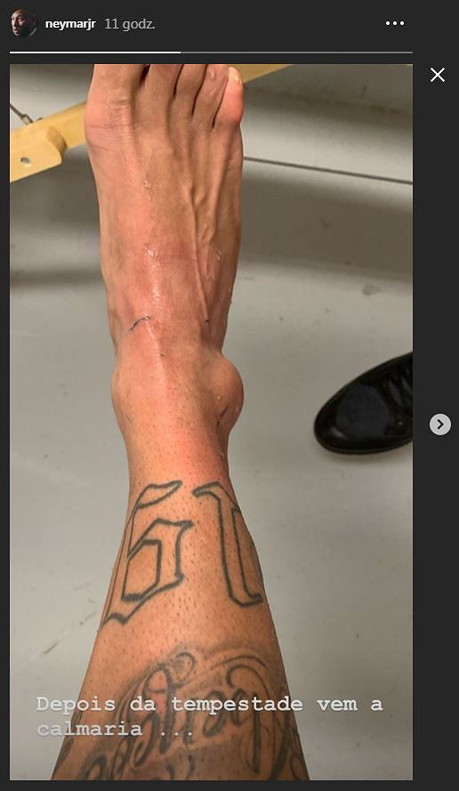 Neymar pokazał zdjęcie kontuzjowanej kostki