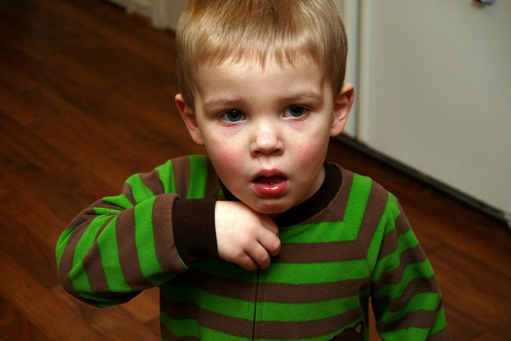 Guz Wilmsa to nowotwór dziecięcy