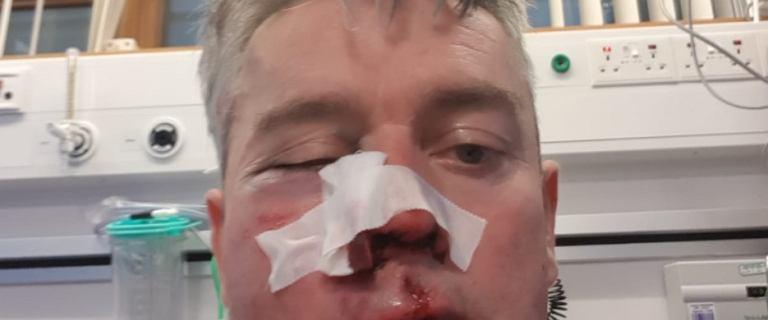 Sędzia brutalnie pobity po meczu amatorskiej ligi w Irlandii. ''Pić może tylko przez słomkę''