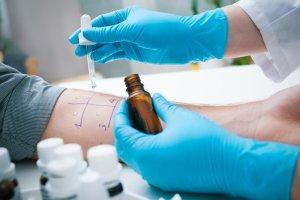Testy skórne na alergię - trzeba się przygotować?