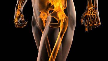 Ból u pacjentów z fibromialgią najczęściej pojawia się w obrębie tzw. punktów spustowych, czyli punktów nadmiernie wrażliwych