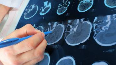 Nieprawidłowości w budowie czaszki są najlepiej widoczne w badaniu obrazowym