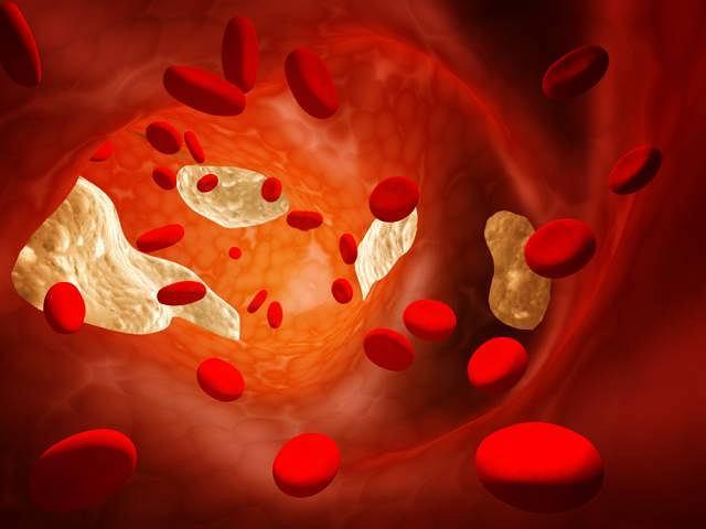 Nieprawidłowy metabolizm lipidów, czyli hiperlipoproteinemia najczęściej dotyka osoby z cukrzycą lud chorobą trzustki