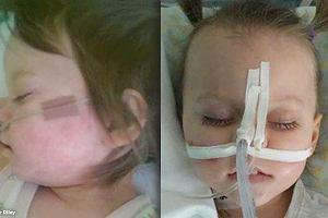Dziewczynka 3 miesiące umierała na odrę. Nie mogła być zaszczepiona ze względu na rzadką chorobę