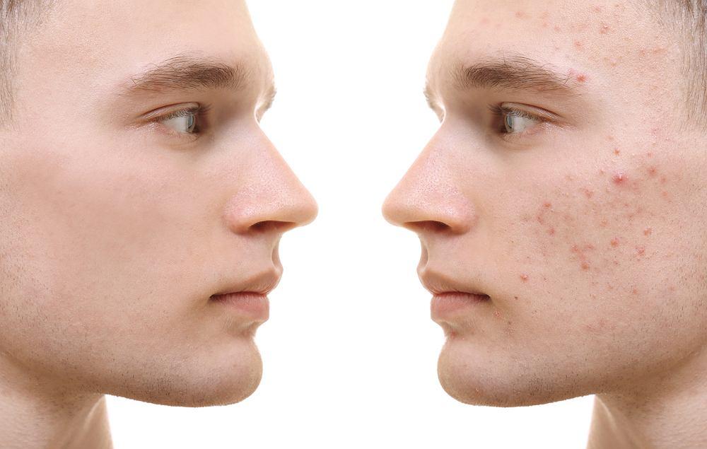 Niektóre przypadki tzw. trądziku wymagają specjalistycznego leczenia