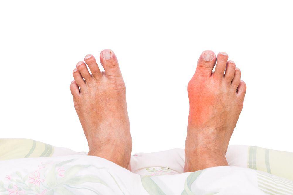 Podagra, znana też jako dna moczanowa, zaliczana jest do chorób metabolicznych.