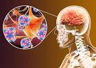Wirusowe zapalenie opon mózgowo-rdzeniowych. Przyczyny, obawy,leczenie