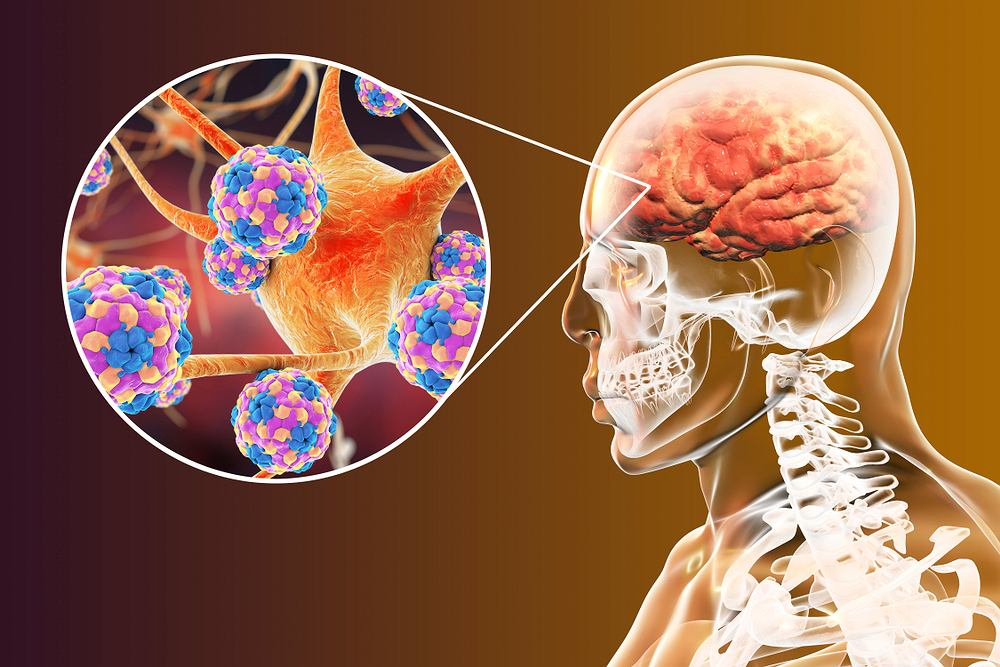 Zapalenie opon mózgowo-rdzeniowych to choroba infekcyjna, którą wywołują nie tylko wirusy