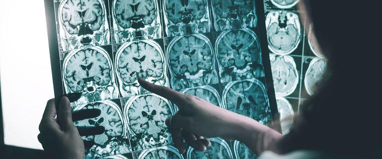 W walce z Alzheimerem