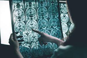 Znamy przyczynę alzheimera? Naukowcy podejrzewają bakterię, która powoduje choroby dziąseł