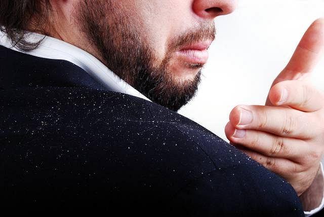 Łupież najczęściej wywołany jest infekcją grzybiczą