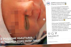 Lekarze zranili dziecko przy cesarskim cięciu, a winą obarczyli matkę. Ekspert wyjaśnia, jak to możliwe