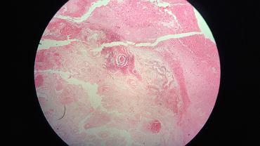 Potworniak (łac. teratoma) jest nowotworem, który składa się z wielu komórek i tkanek pochodzących z różnych części ciała