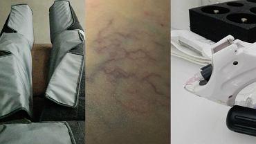 Usuwanie pajączków z nóg