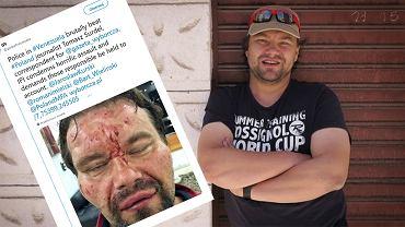 Wieczorem 14 marca w Caracas funkcjonariusze wenezuelskiej policji ciężko pobili dziennikarza 'Gazety Wyborczej' Tomasza Surdela