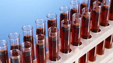 Immunoglobuliny typu M występują w czerwonych krwinkach i chronią organizm przed chorobami krwi