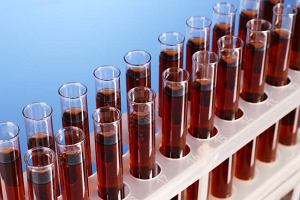 Immunoglobuliny typu M (IgM)