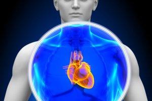 Częstoskurcz komorowy: objawy, leczenie