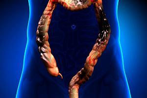 Czy seks analny powoduje raka jelita grubego