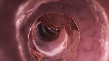 U osób z zespołem Lyncha to przede wszystkim mutacja genetyczna decyduje o rozwoju raka jelita grubego