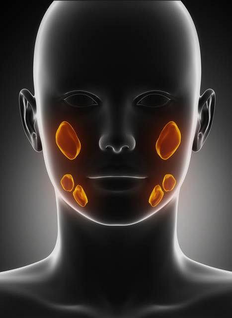 Kserostomia to suchość w gardle spowodowana nieprawidłowym działaniem ślinianek