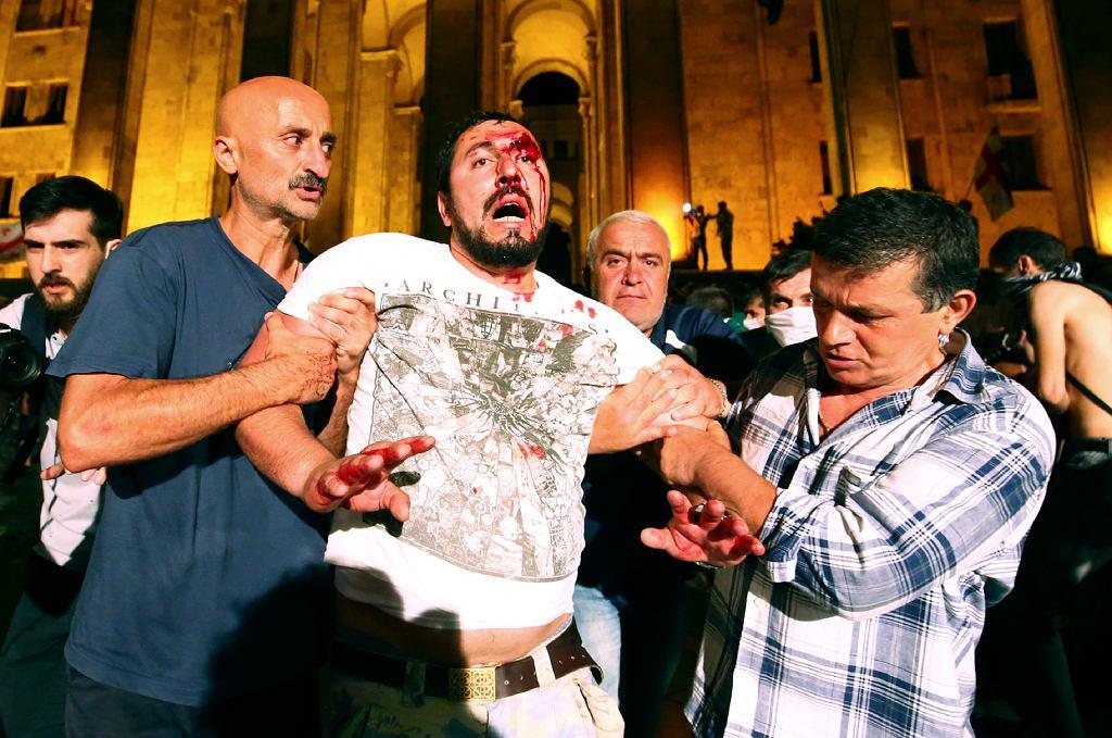 Gruzja. Kilkadziesiąt osób rannych w starciach z policją