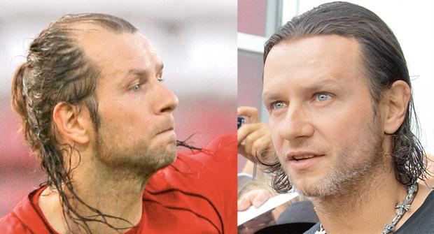 wypadanie włosów, pielęgnacja, włosy, Przeszczepy włosów, Radek Majdan przed i po przeszczepie włosów