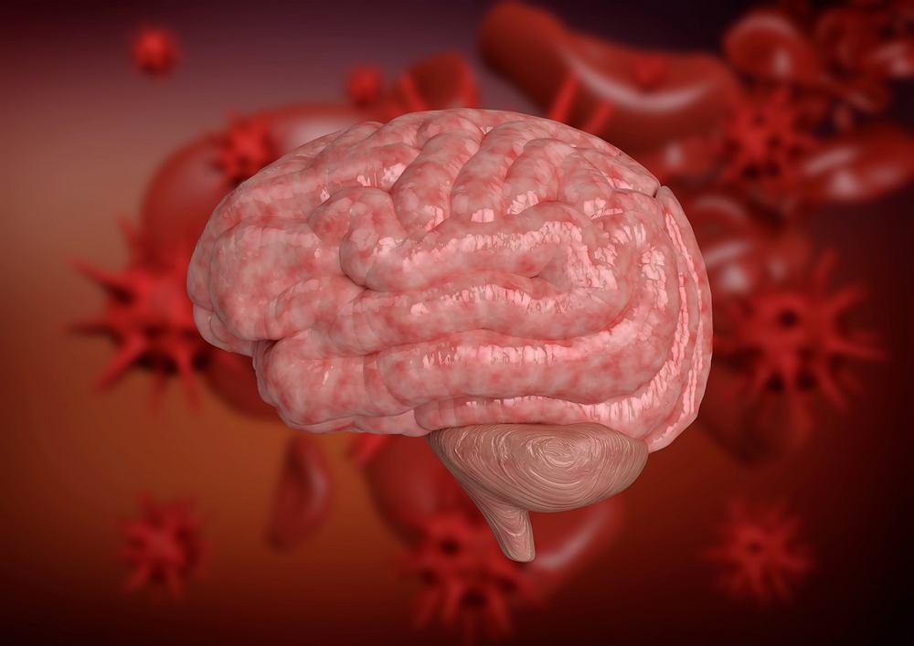 Bakteryjne zapalenie opon mózgowo-rdzeniowych jest ostrym, inwazyjnym zakażeniem