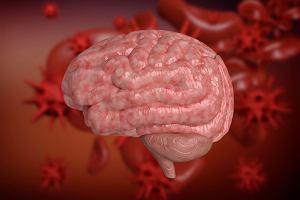 Bakteryjne zapalenie opon mózgowo-rdzeniowych. Przyczyny, objawy, leczenie
