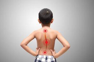 Skolioza u dzieci - przyczyny, objawy i leczenie