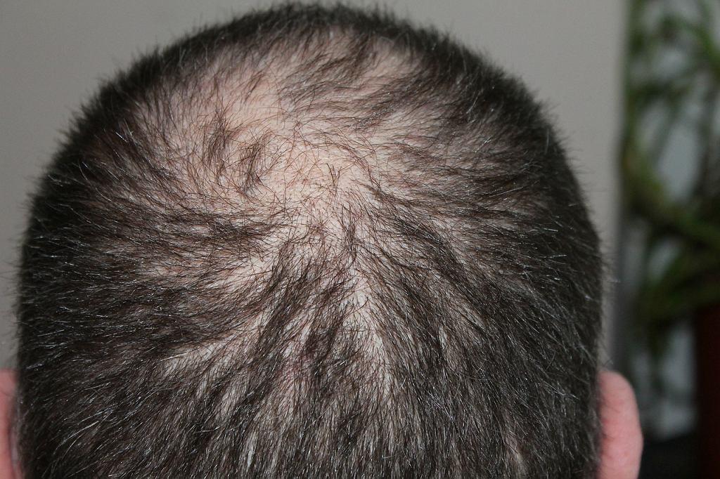 Wszystko wskazuje na to, że Koreańczycy odkryli remedium na łysienie
