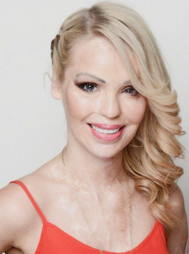 Katie Piper w programie TLC  'Piękno do poprawki'