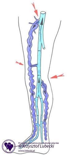rążenie żylne w przypadku żylaków. Krew cofa się przez niewydolne ujścia żyły odpiszczelowej i odstrzałkowej (niewydolne zastawki zaznaczono czerwonymi strzałkami)